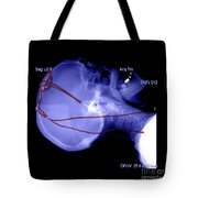 Lateral X-ray Of Deep Electrodes Tote Bag