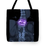Severe Osteoporosis Tote Bag