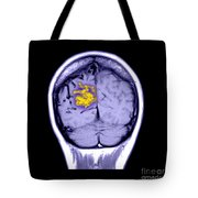 Mri Of Arterial Venous Malformation Tote Bag