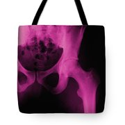 X-ray Of The Hip Tote Bag