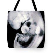 Human Embryo Tote Bag