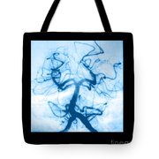 Angiogram Of Embolus In Cerebral Artery Tote Bag