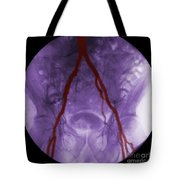 Angiogram Of Iliac Arteries Tote Bag