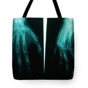 Arthritic & Normal Hand Tote Bag