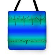 Atrial Fibrillation & Normal Heart Beat Tote Bag