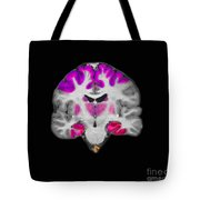 Brain Areas Affected By Alzheimers Tote Bag