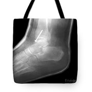 Broken Ankle Tote Bag