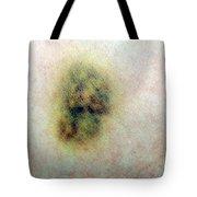 Bruise Tote Bag