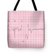 Cardioversion, 1 Of 2 Tote Bag