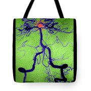 Cerebral Angiogram Tote Bag