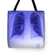 Chest X-ray Tote Bag
