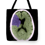 Ct Of Stroke Tote Bag
