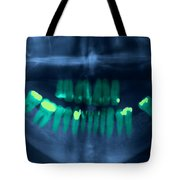 Dental X-ray Tote Bag