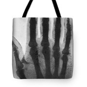 Early X-ray, 1897 Tote Bag