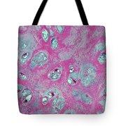 Elastic Fibrocartilage Tote Bag