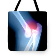 Elbow Injury Tote Bag