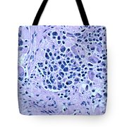 Ganglioneuroblastoma Tote Bag