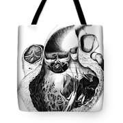 Heart Anatomy, Carl Von Rokitansky, 1875 Tote Bag