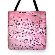 Histopathology Of Typhoid Fever Tote Bag