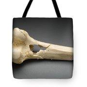Human Distal Femur, Gunshot Wound, 1984 Tote Bag