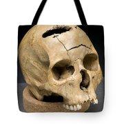 Keyhole Gunshot Trauma, 1860s Tote Bag by Science Source