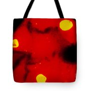Lm Of Chlamydia Trachomatis Infection Tote Bag