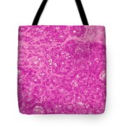 Mammary Gland Lm Tote Bag
