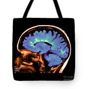 Mri Of Multiple Sclerosis Tote Bag