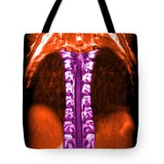 Mri Of Normal Thoracic Spinal Cord Tote Bag