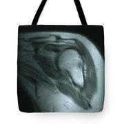Mri Of Shoulder With Impingement Tote Bag by Science Source