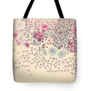 Normal Stellate Cells Tote Bag