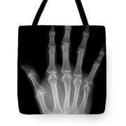 Osteoporosis And Degenerative Arthritis Tote Bag