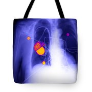 Pacemaker Tote Bag