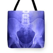 Pelvic X-ray Tote Bag