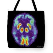 Pet Scan Of Alzheimers Disease Brain, 2 Tote Bag