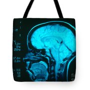Radiology Angiography Of Brain Tote Bag