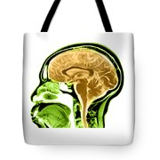 Sagittal View Of An Mri Of The Brain Tote Bag