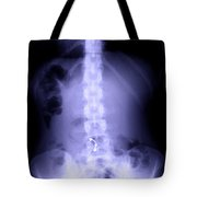 Scoliosis Tote Bag