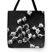 Sem Of Blood Cells In Sheep With Kidney Tote Bag by Science Source