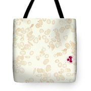 Sickle Cell Anemia Tote Bag