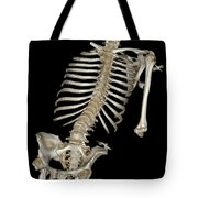 Skeletal Reconstruction Tote Bag