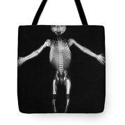 Skeleton Of A Baby Tote Bag