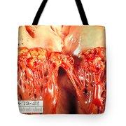 Subacute Bacterial Endocarditis Tote Bag