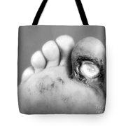 Syphilis Ulcer Tote Bag