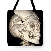 Three-dimensional Ct Reconstruction Tote Bag