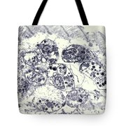 Toxoplasmosis Of Heart In Aids Tem Tote Bag by Science Source