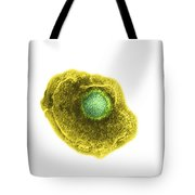 Varicella Chickenpox Virus Tote Bag