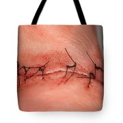 Wound Healing Day 1 Tote Bag