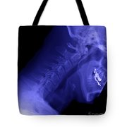 X-ray Of A Cervical Spine Tote Bag