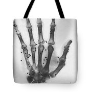 X-ray Of A Hand With Buckshot Tote Bag
